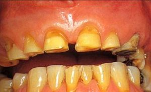 front worn teeth with sharp edges